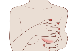 Urgent Breast Fungal Infection Facts for Healthy Boobies