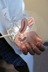 doctor holding a plastic vagina model