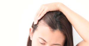 hair loss is a common PCOS question