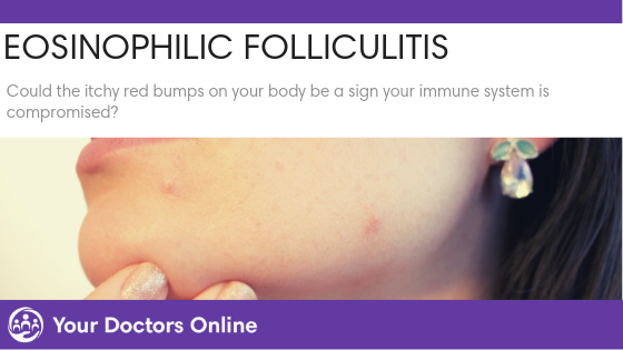 Eosinophilic Folliculitis – Cause, Signs and Treatment