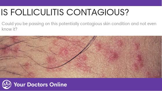 Is Folliculitis Contagious?