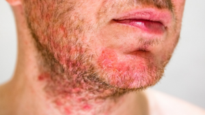 Man's face with razor burn