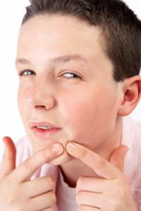 teen boy popping a pimple