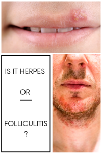 image of folliculitis and herpes