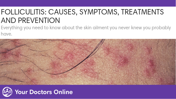 Folliculitis: Causes, Symptoms, Treatment and Prevention