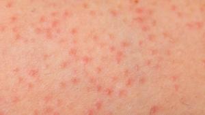 close of image of folliculitis