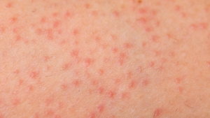 close up image of folliculitis