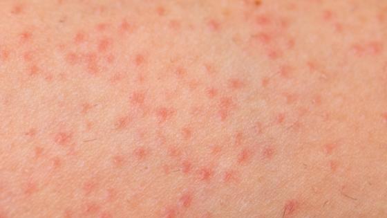 close up image of folliculitis