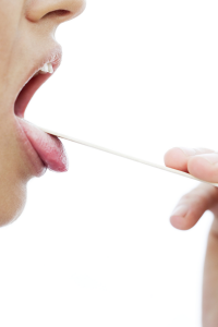 image of an open mouth getting examined
