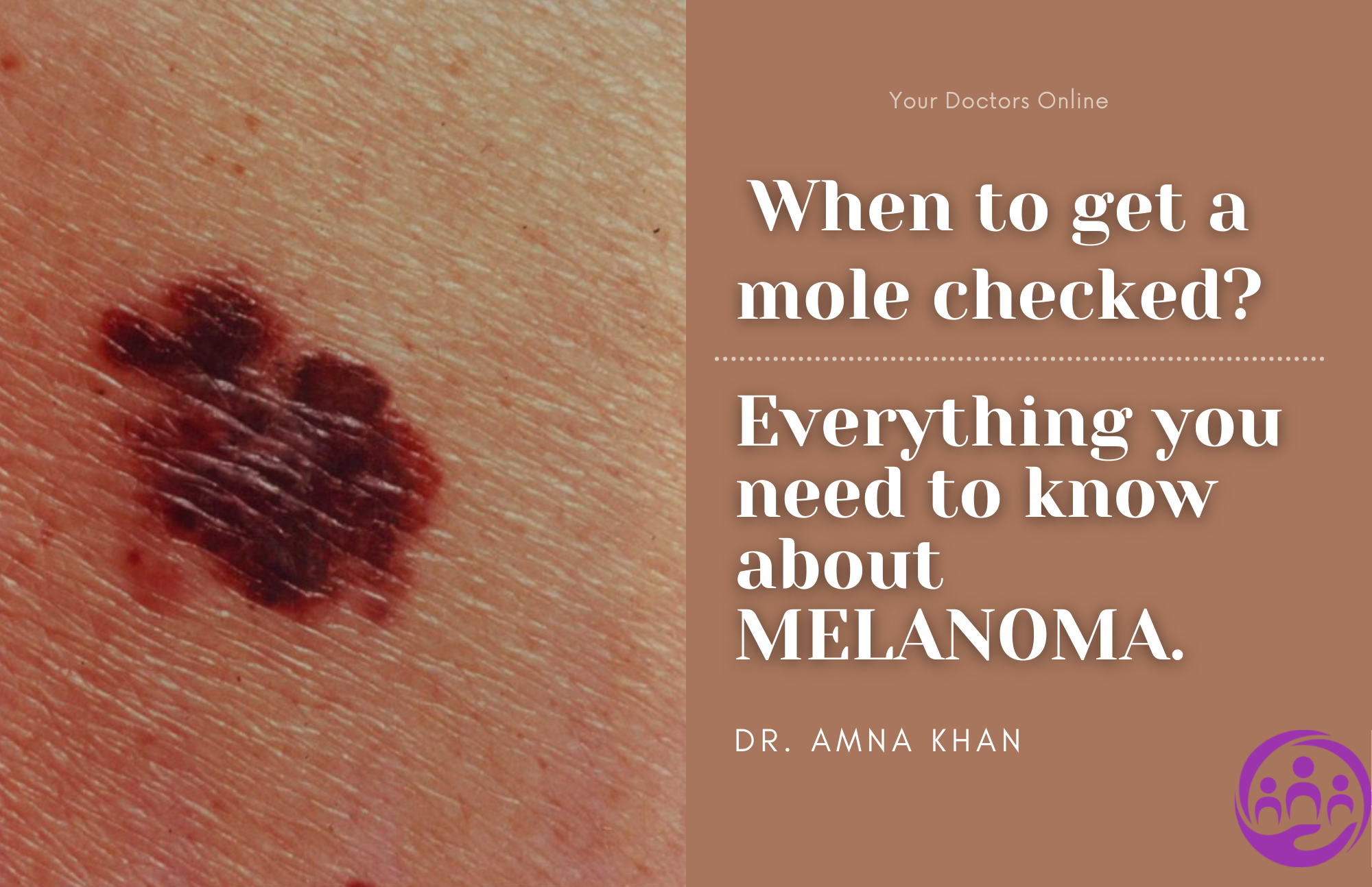 When to get a mole checked? Everything you need to know about Melanoma.