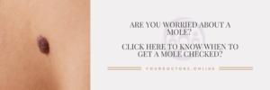 When to get a mole checked?