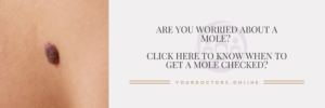 Doctor for moles