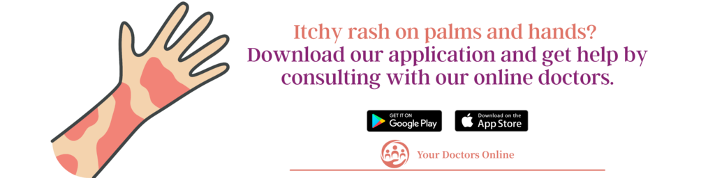 Online doctor for itchy rash